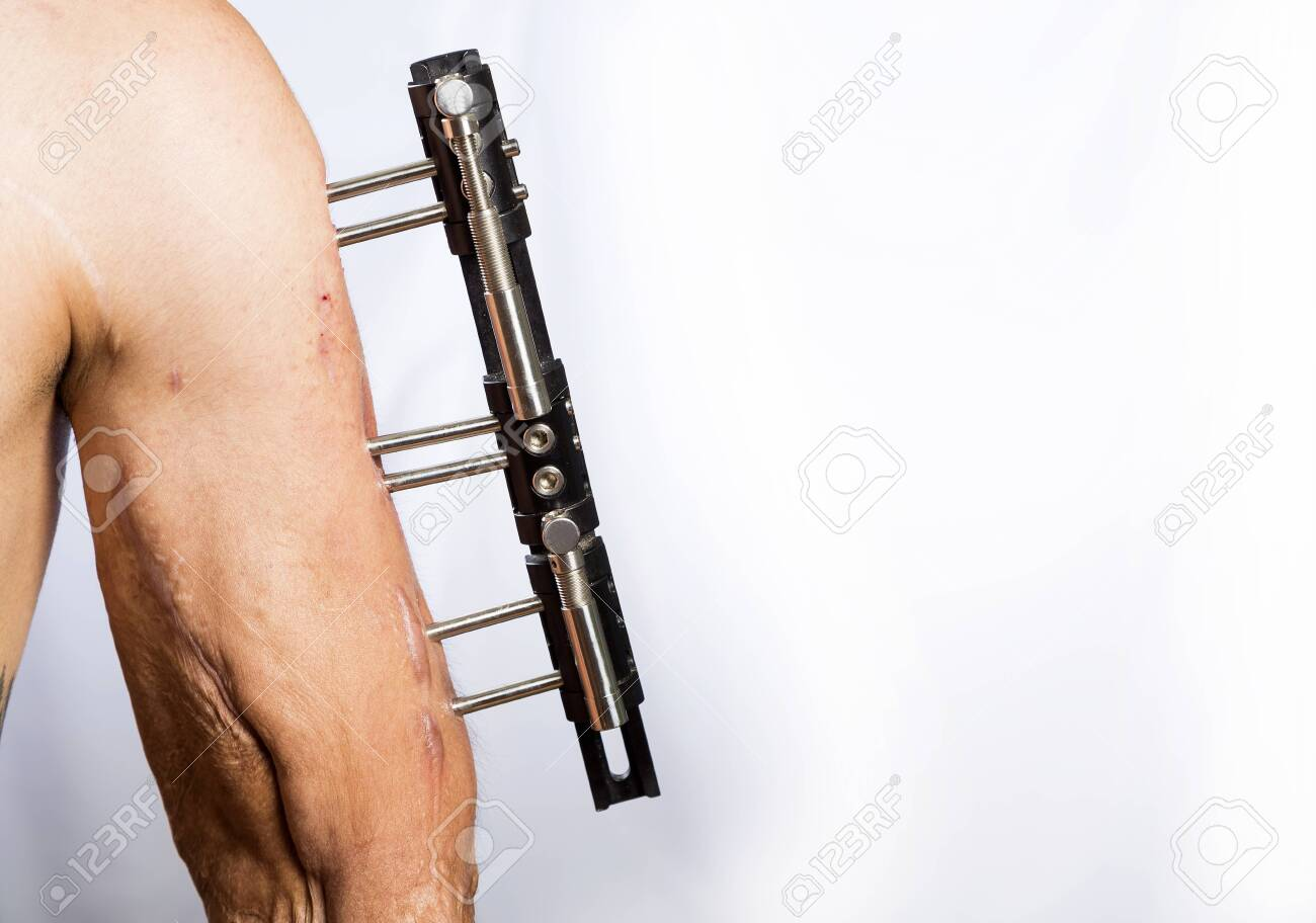 Broken Arm With External Metal Fixator White Background Stock Photo Picture And Royalty Free Image Image 141682151