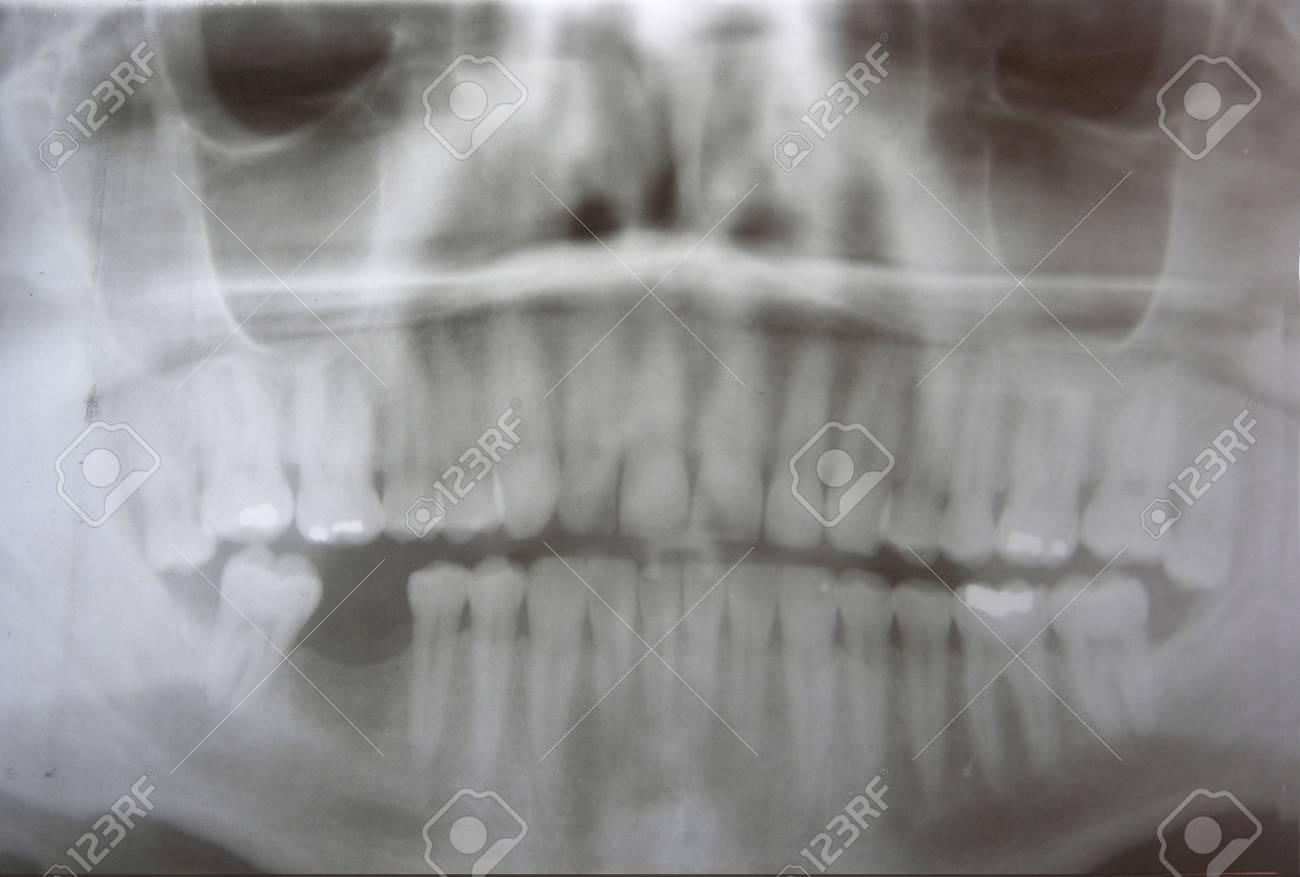 Dental x-ray of man Stock Photo - 10320942