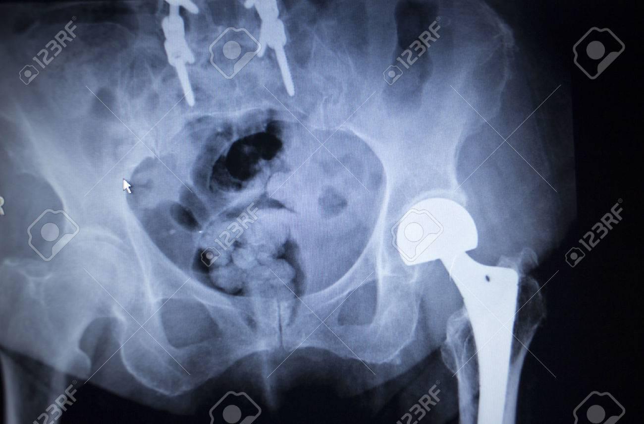 X-ray-Scan Bild Der Hüftgelenke Mit Orthopädischen Hüftgelenkersatz ...