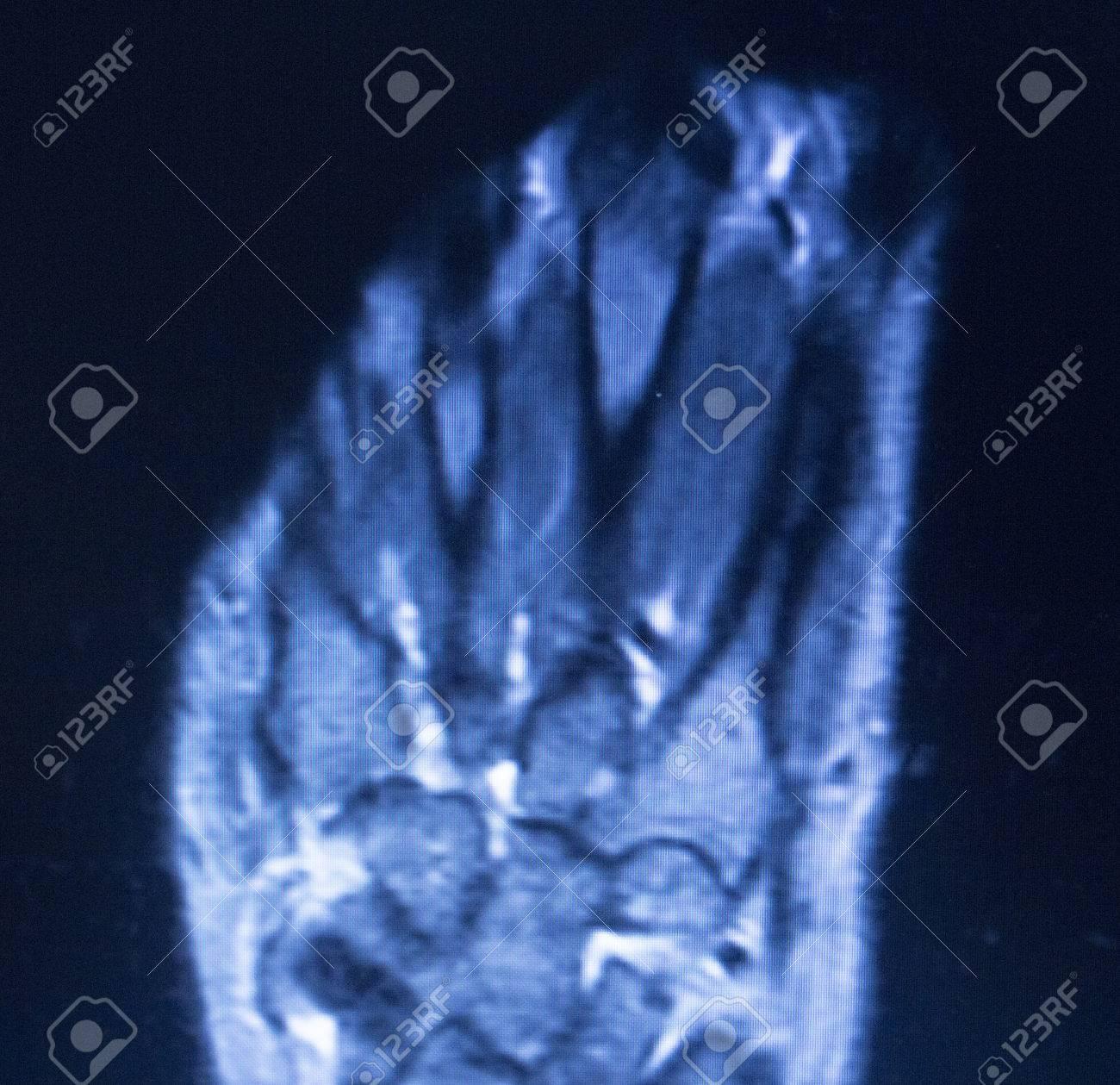 MRI Magnetresonanztomographie Medizinische Scan-Test-Ergebnisse Der ...