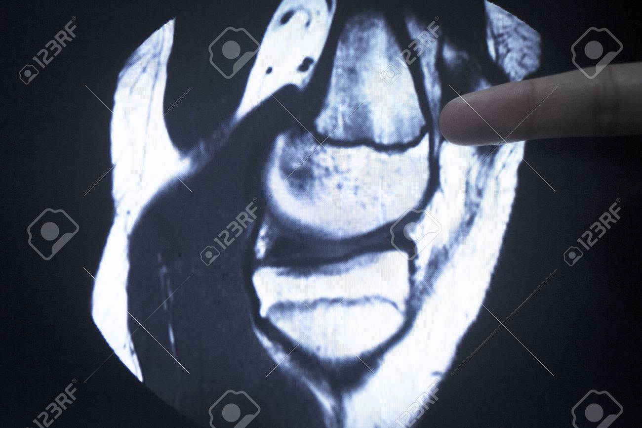 MRI Magnetic Resonance Imaging Medical Scan Test Results Showing ...