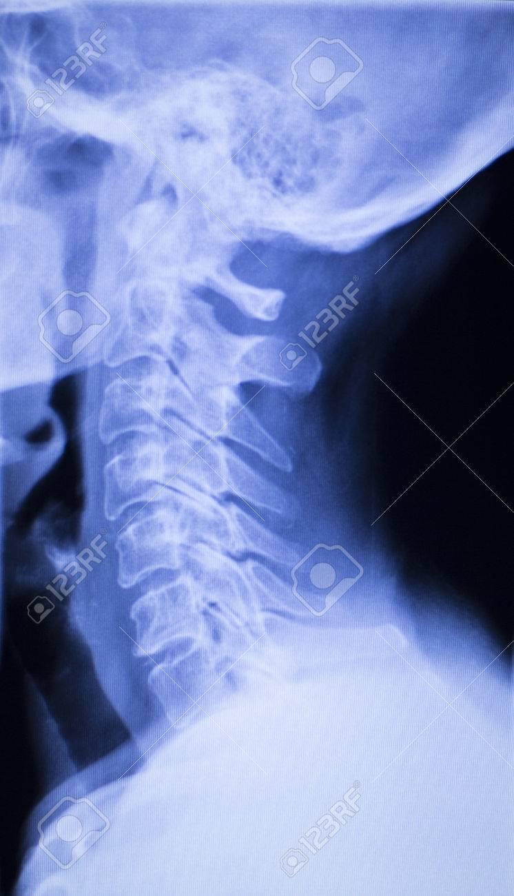 Schädel, Hals, Wirbelsäule, Wirbel Und Schultern Verletzung ...
