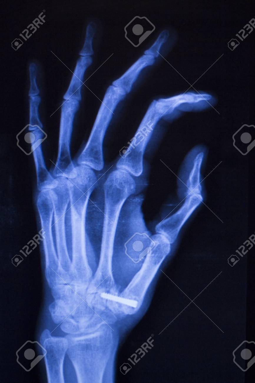 Hand, Daumen, Handgelenk Und Finger Xray Traumatologie Und ...