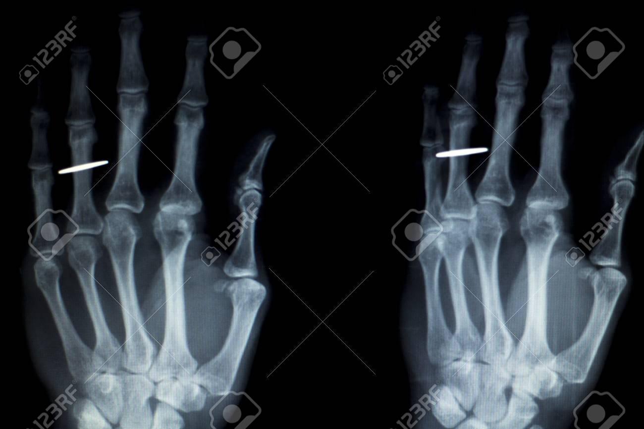 Orthopädie Hand Fingergelenk Meniskus, Bänder, Sehnen Und Knorpel ...