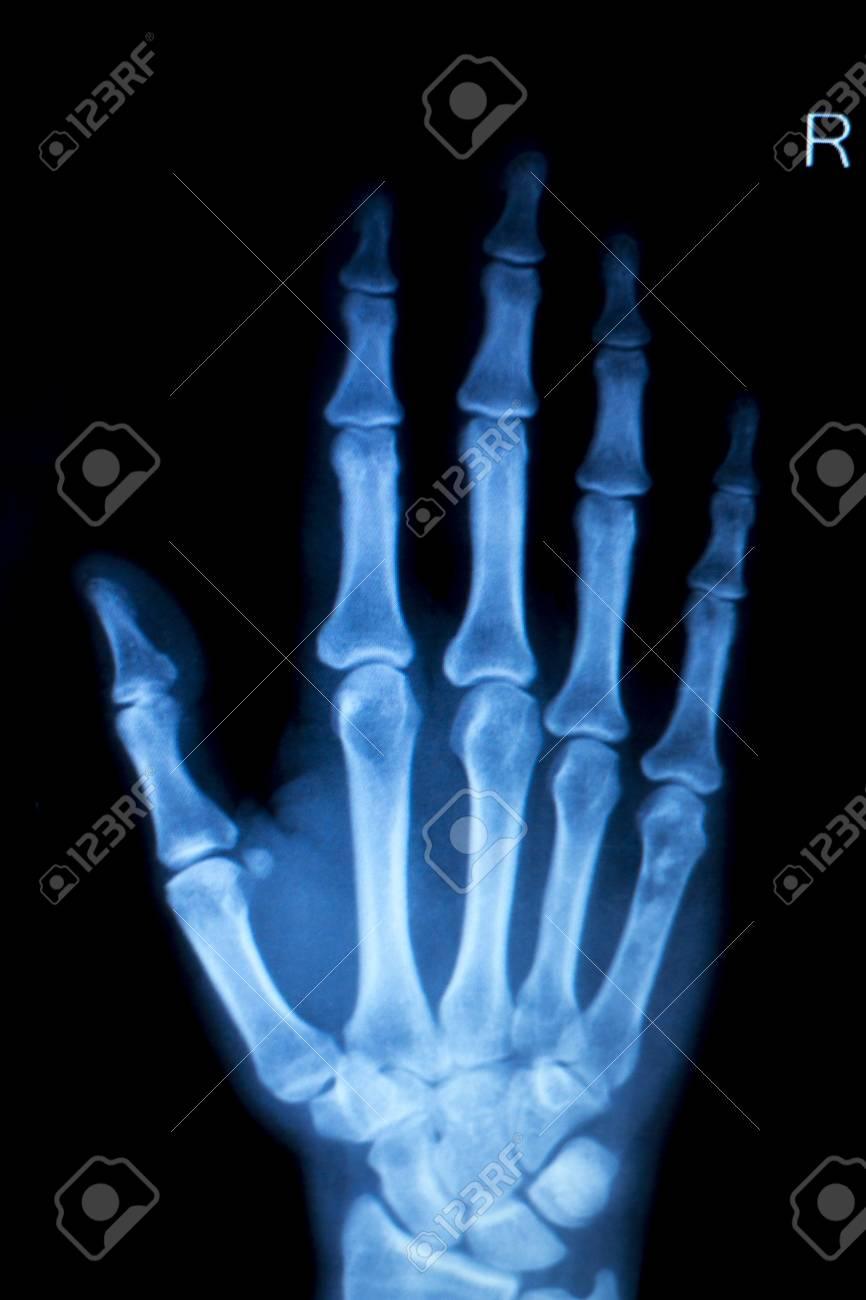 orthopedics hand finger joint meniscus ligament tendon and stock