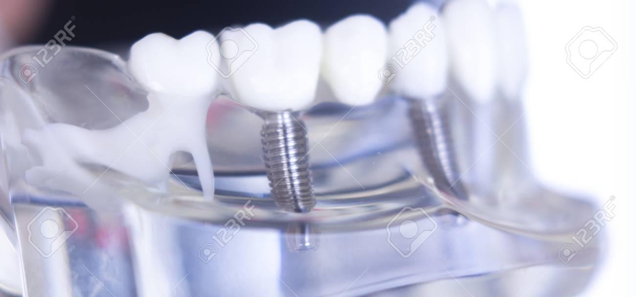 Insertable teeth: peculiarities of dental prosthetics