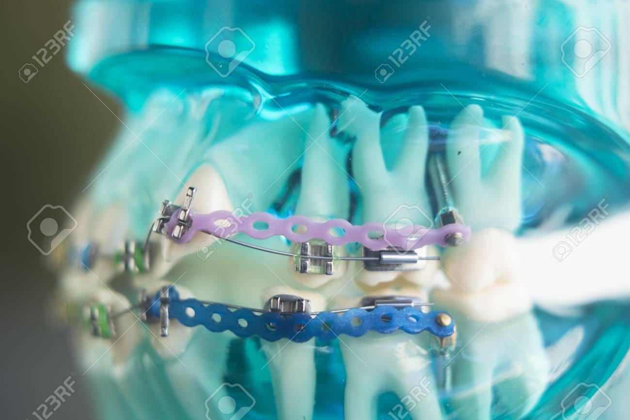 Dental teeth retainers metal aligners brackets to straighten