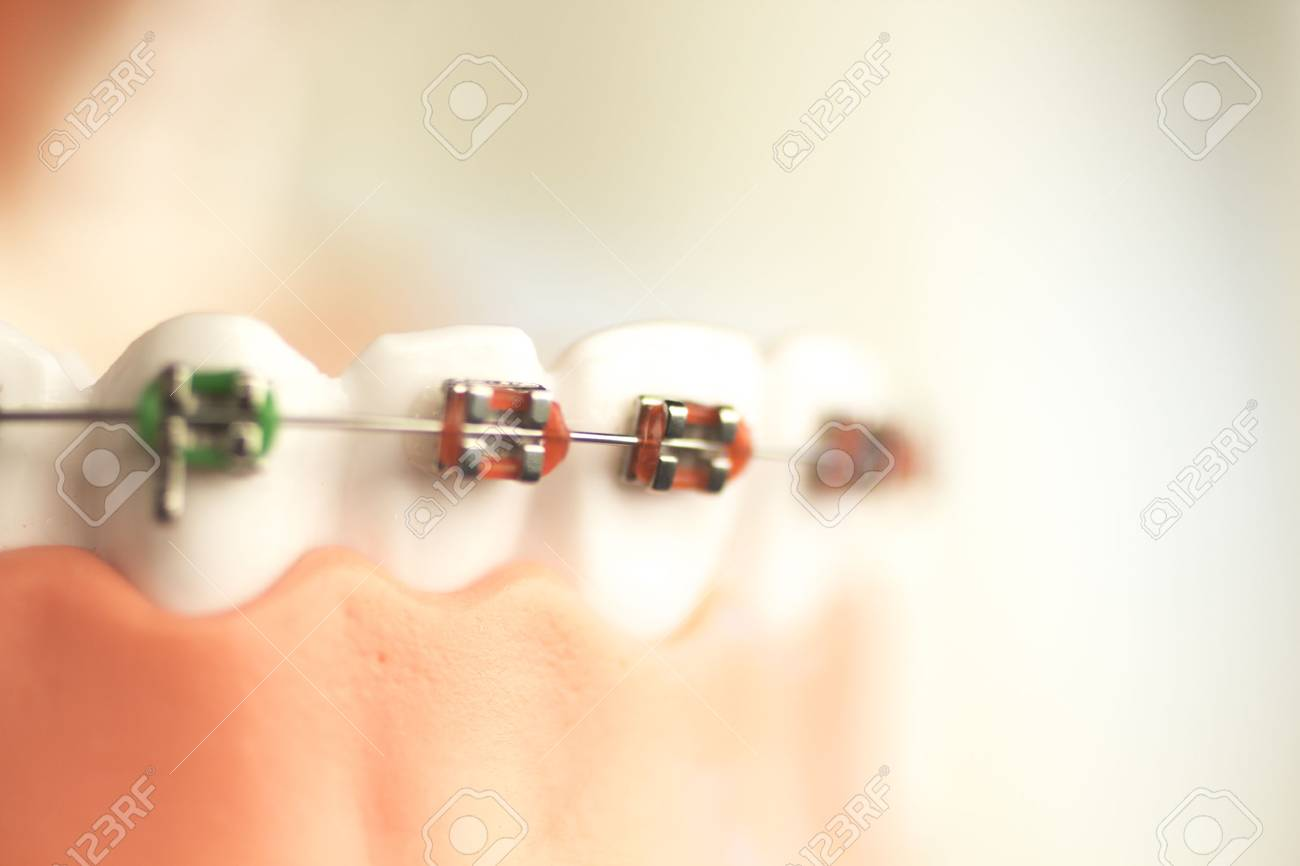 Funky Female Mandible Wired Shut Vignette - Electrical Diagram Ideas ...