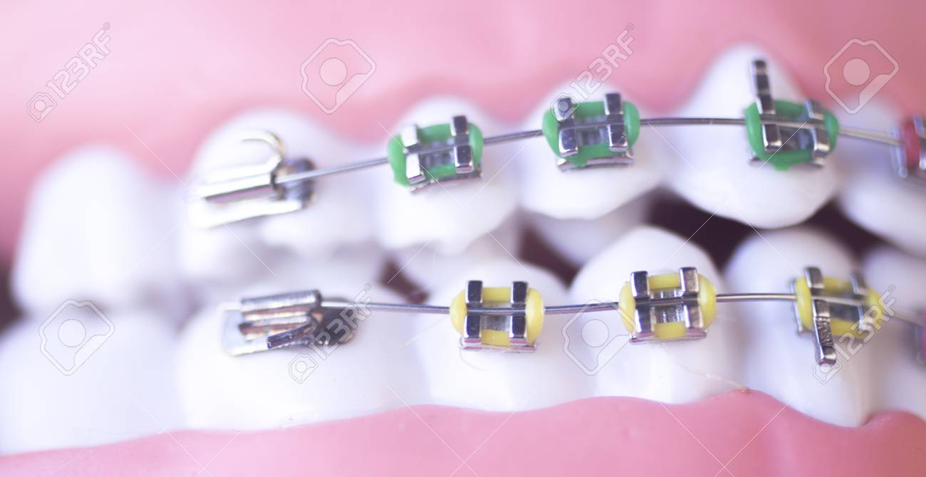 cosmetic dentistry orthodontics dental metal wire teeth brackets teaching student model stock photo 92474443