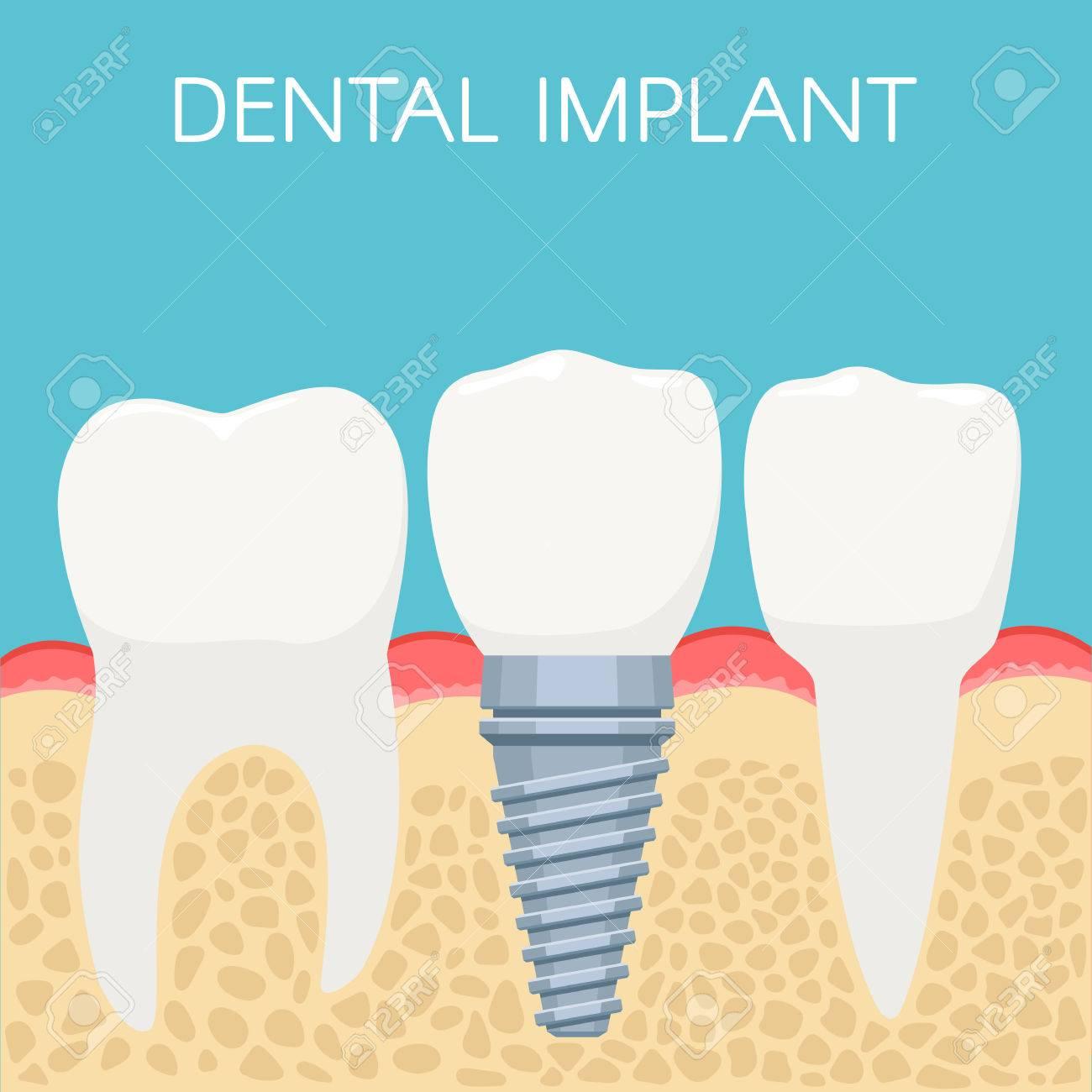 Anatomie Der Menschlichen Zähne Und Zahnimplantat. Stomatologie ...