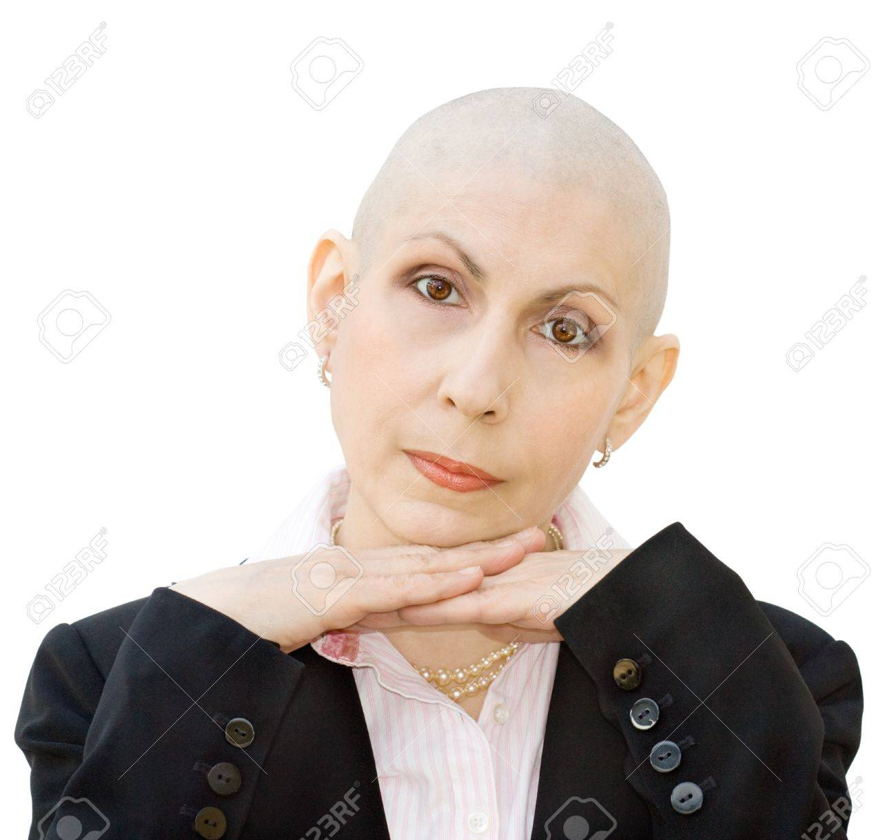 Portrait of cancer patient undergoing chemotherapy and loss of hair. Real woman, diagnosed with breast cancer and ovarian cancer. Isolated over white background. Stock Photo - 10340488
