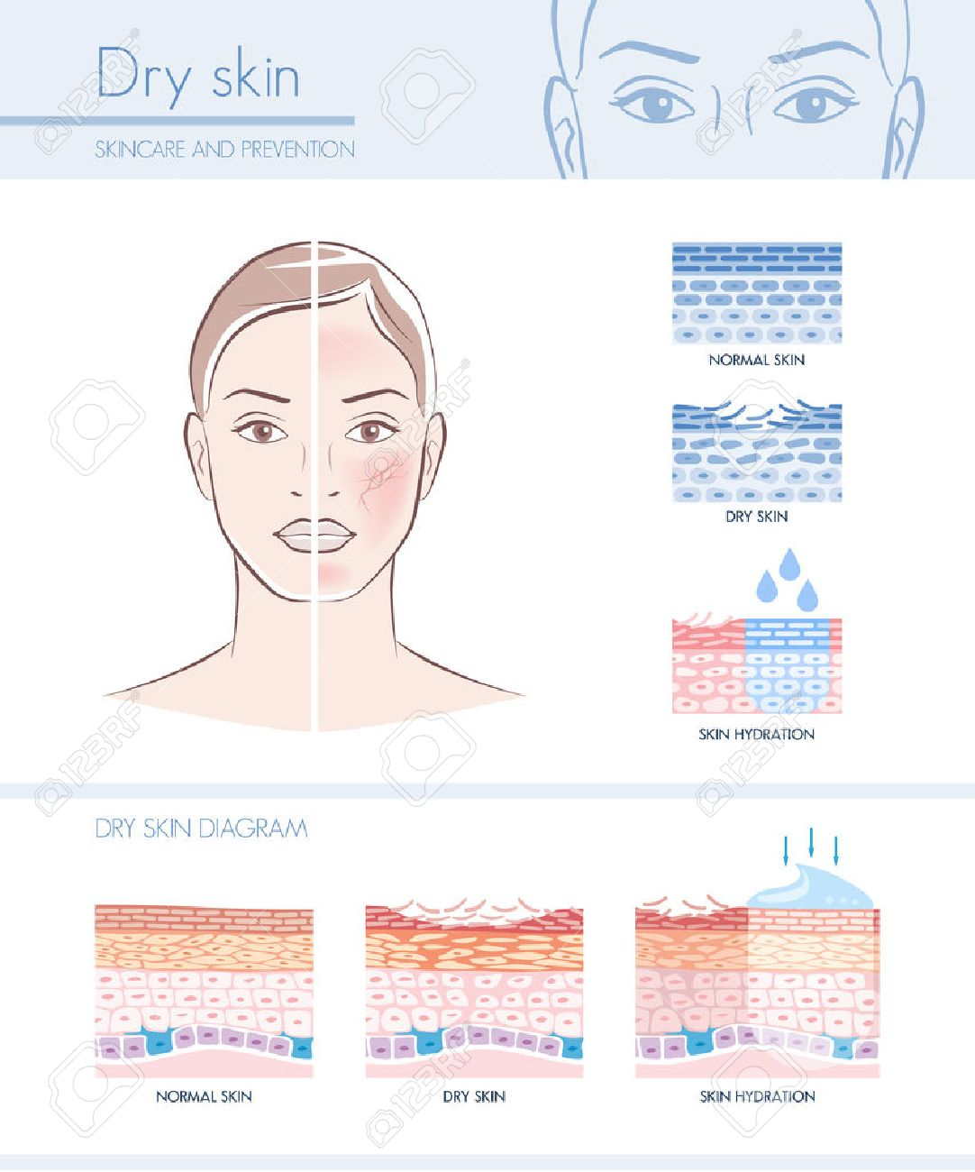 dry skin hydration infographic with skin diagram; skincare and Epidermis Diagram dry skin hydration infographic with skin diagram; skincare and beauty concept stock vector 66933291
