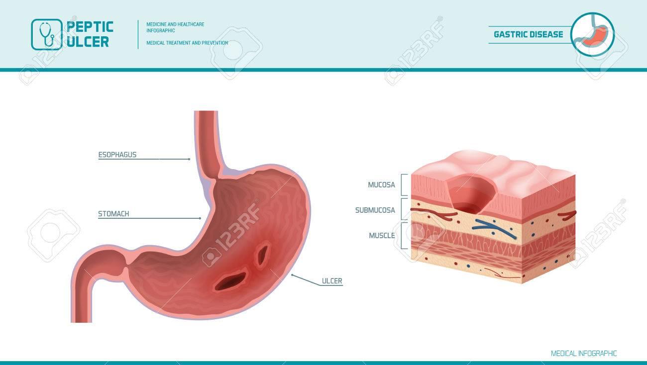 Estómago Y úlcera Péptica: Dolor Inflamado En El Estómago Membrana ...