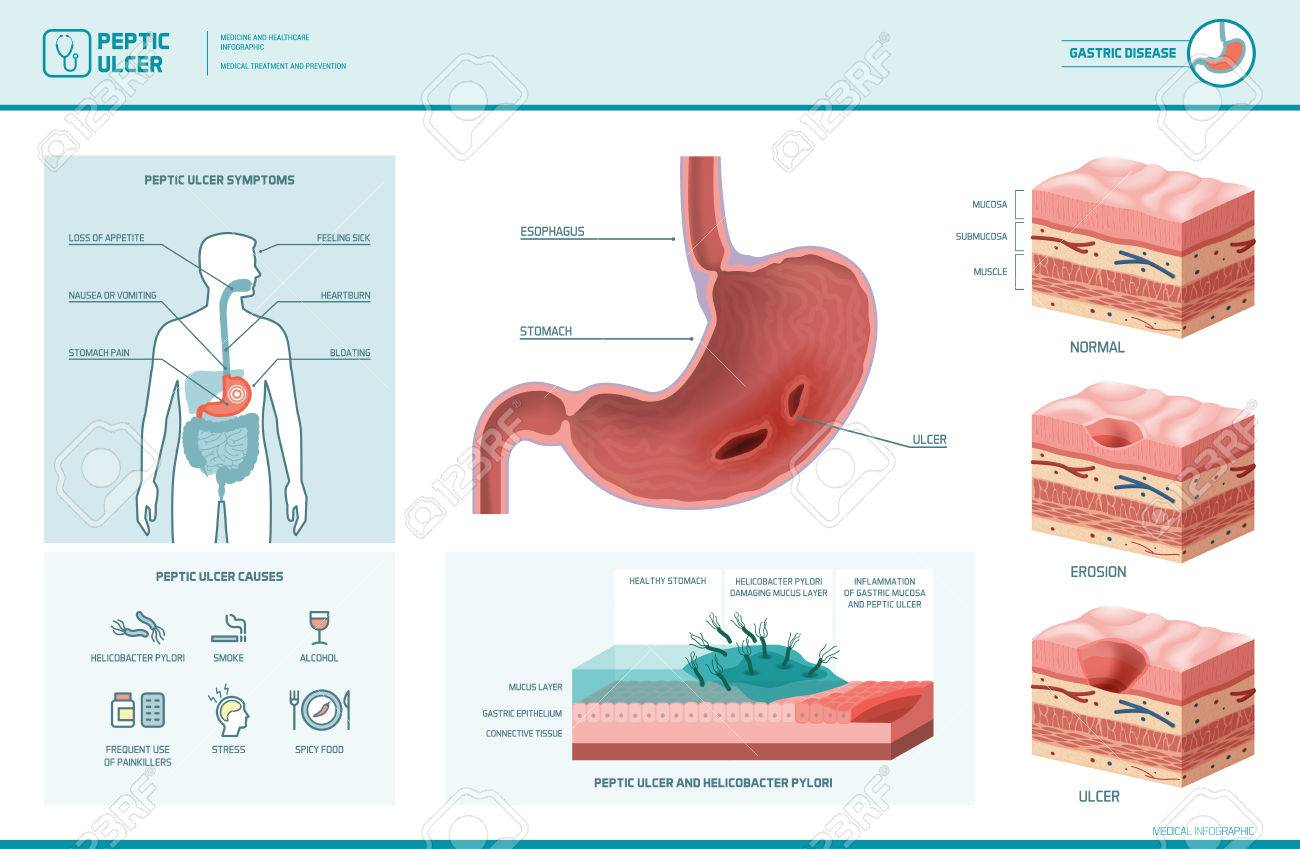 76645252 peptic ulcer and helicobacter pylori infographic with symptoms and causes stomach cross section diag peptic ulcer and helicobacter pylori infographic with symptoms