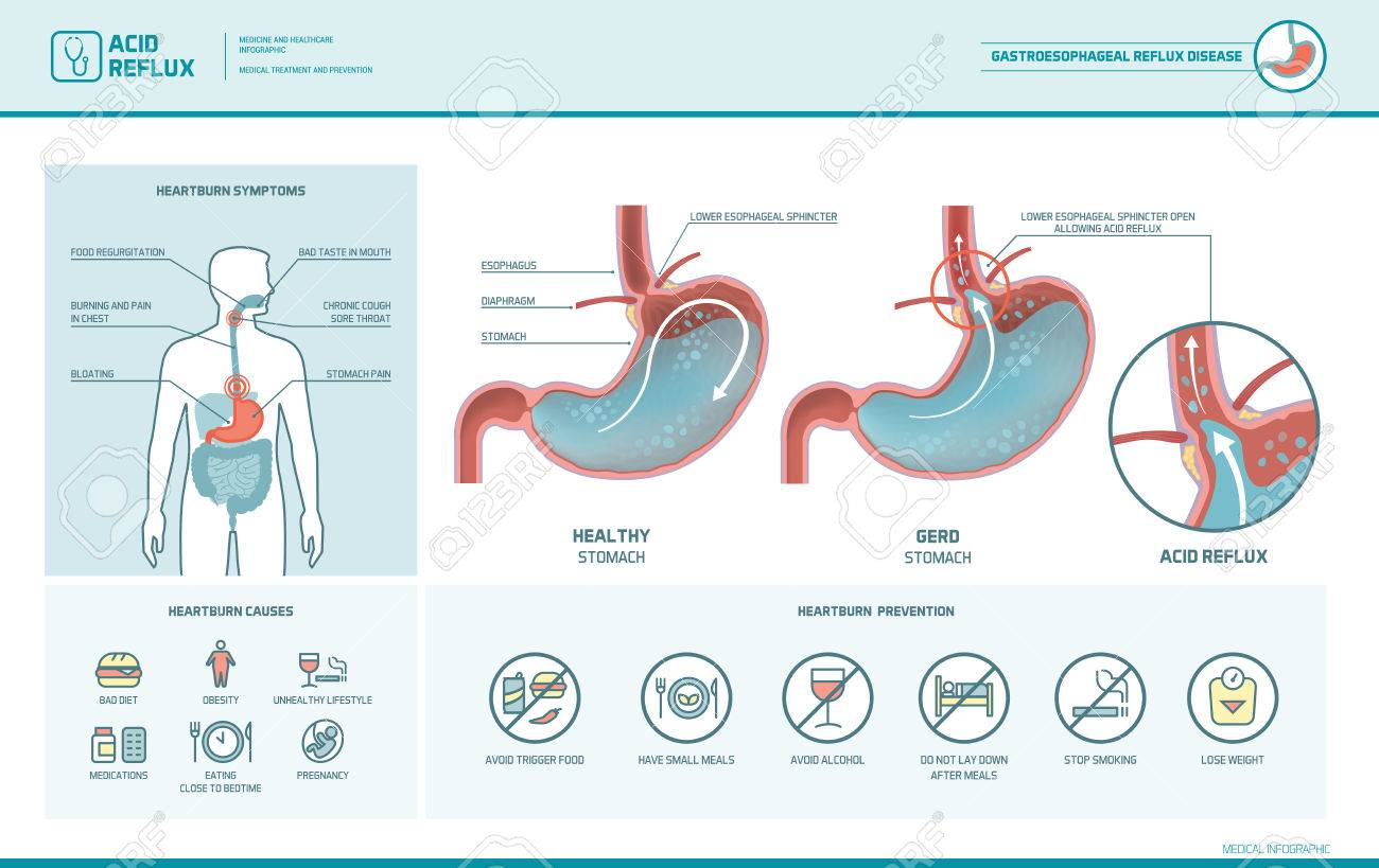 Acid reflux, heartburn and gerd infographic with stomach medical illustration, symptoms, causes and prevention - 76645258