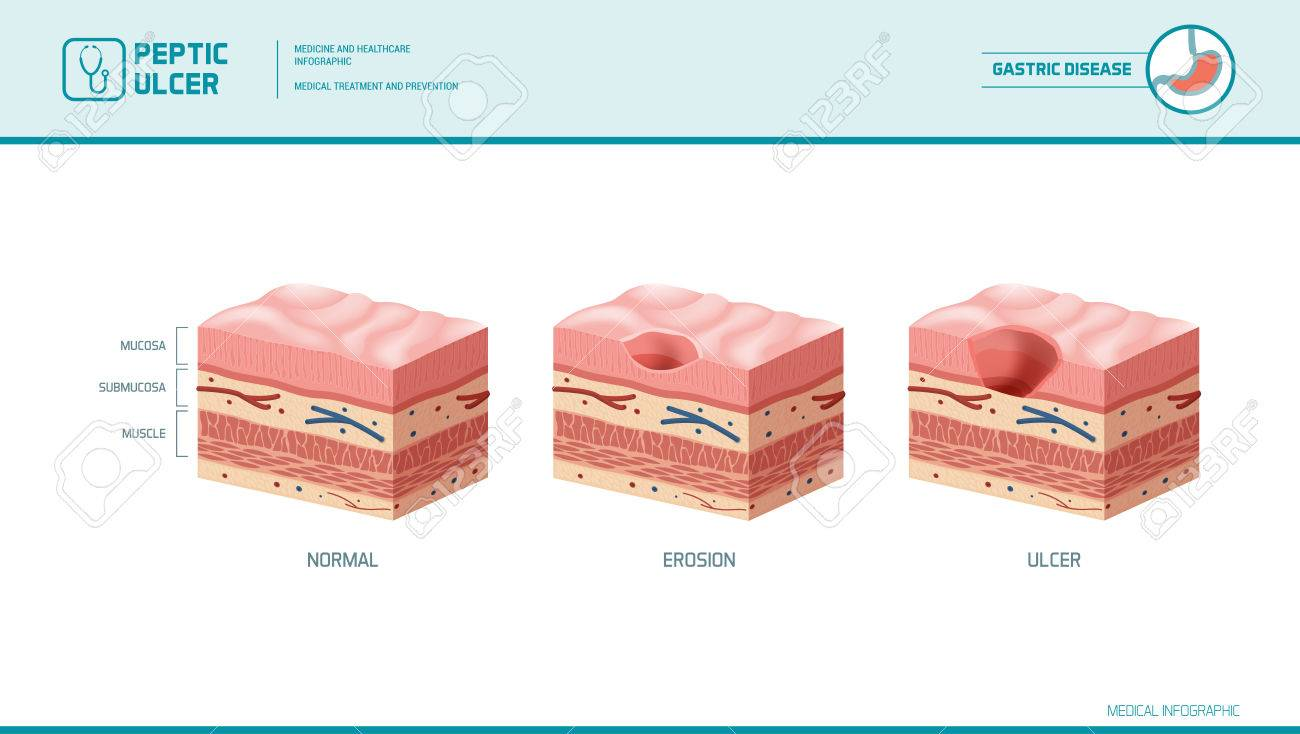 stomach erosion and peptic ulcer stages infographic: stomach lining and  mucosa cross section diagram,