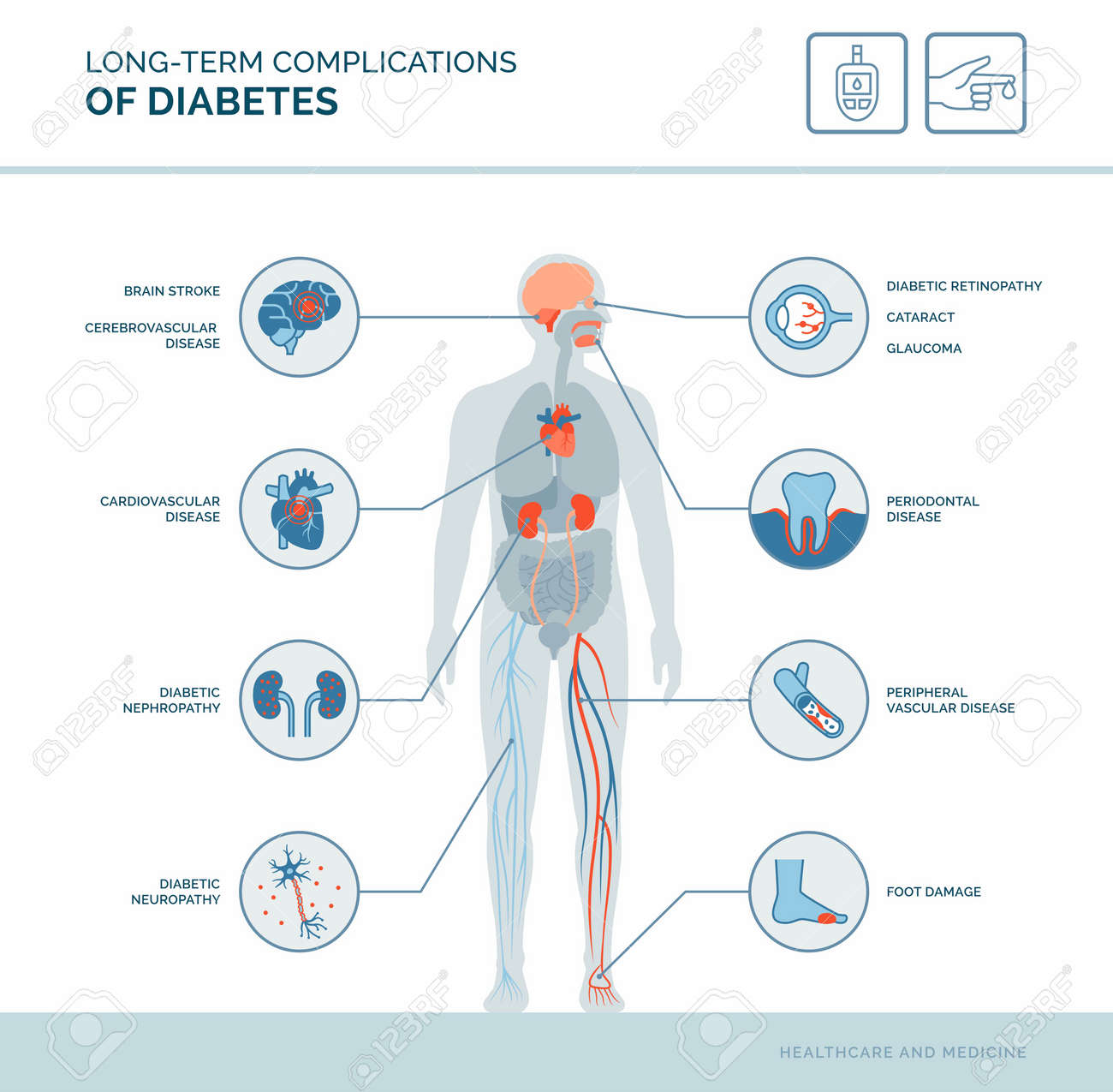 Long-term complications of diabetes medical infographic: diabetes effects on the body - 164103292