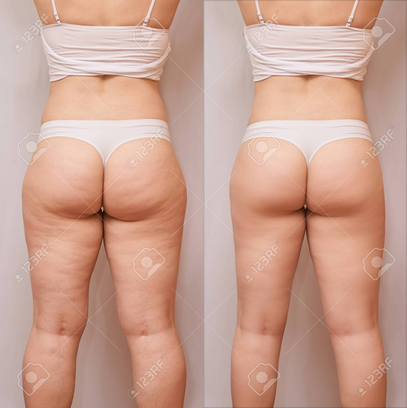 Fat Woman Before And After Back Loss Cellulite Liposuction Stock Photo Picture And Royalty Free Image Image 142414693