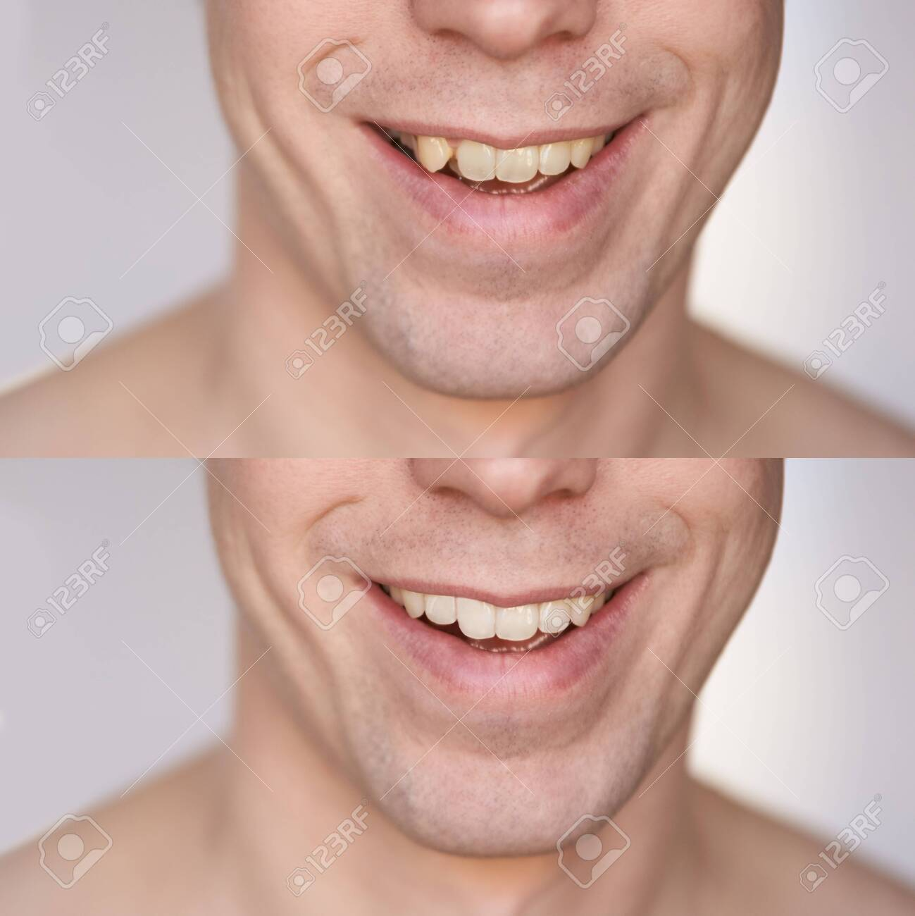 Before after braces concept. Man smile close up collage. Male person. Dental oral care procedure. Stomatology treatment - 143502380