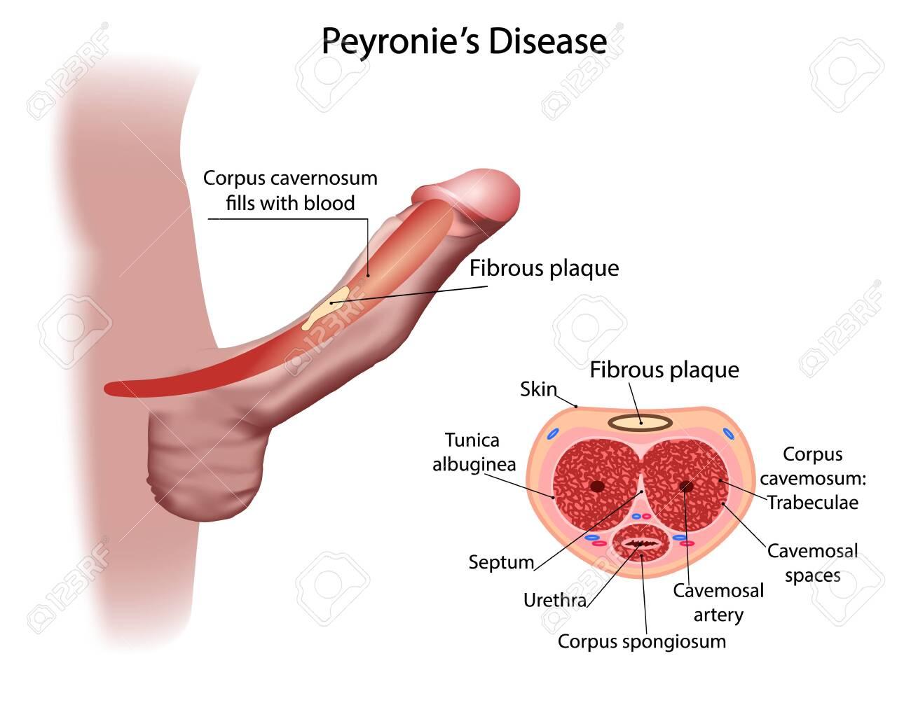 penis deviat