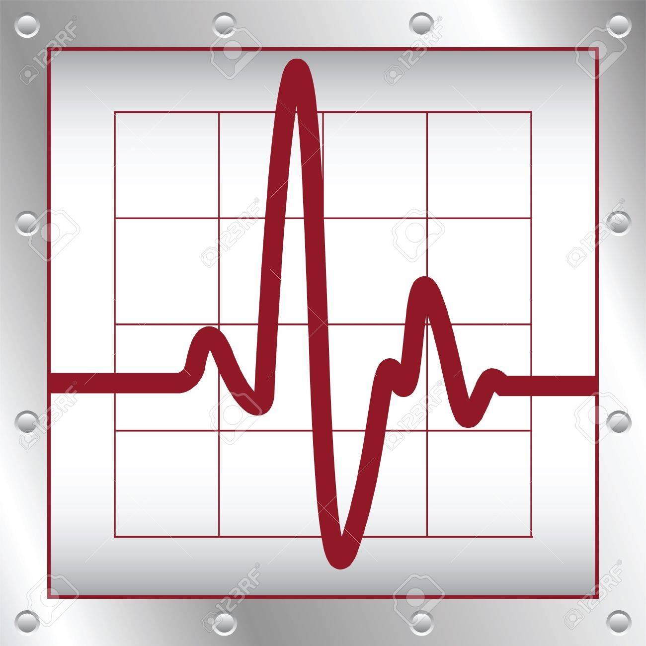 cardiogramme électroniques Banque d'images - 10528570