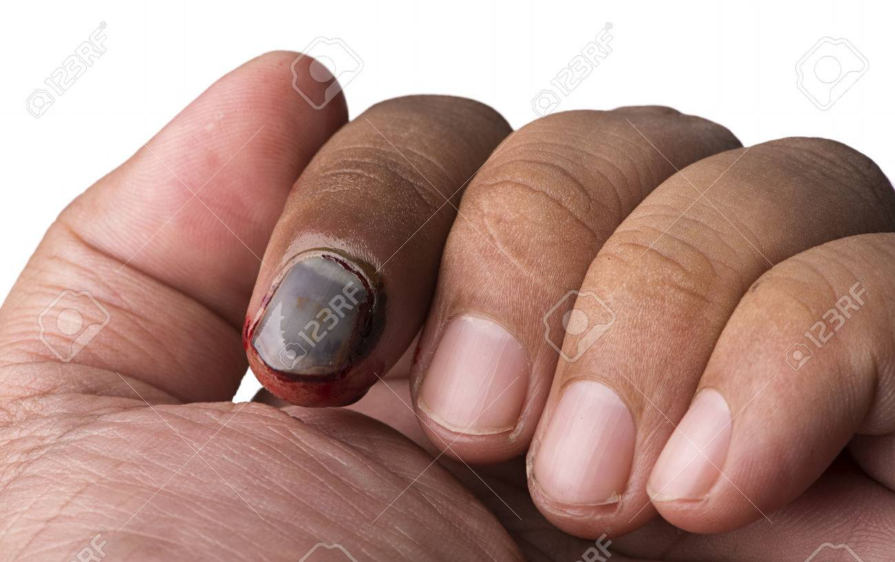 Close Up Broken Nail On White Background Stock Photo, Picture And ...