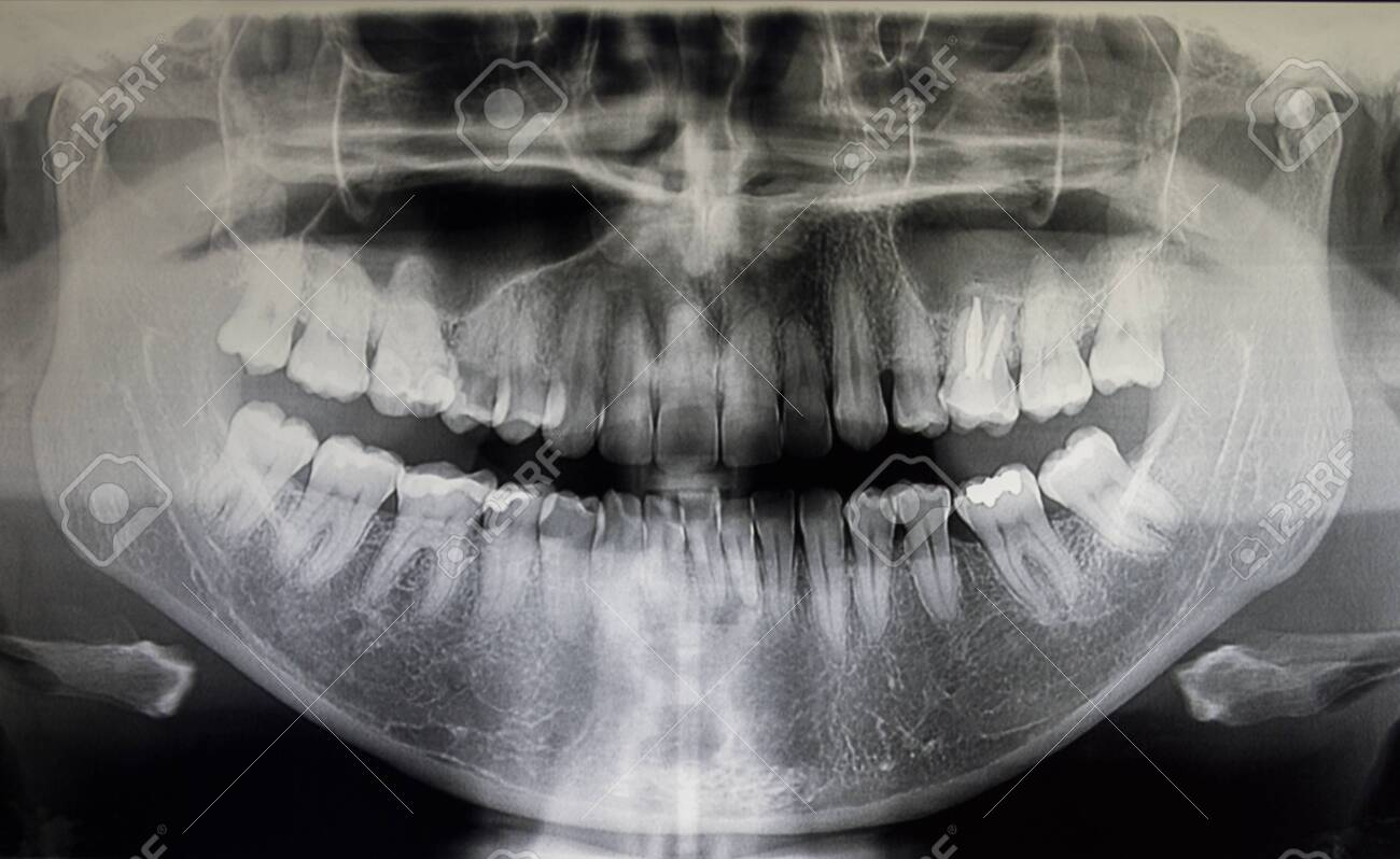 Orthopantomography of an adult patient, dentistry - 132029519