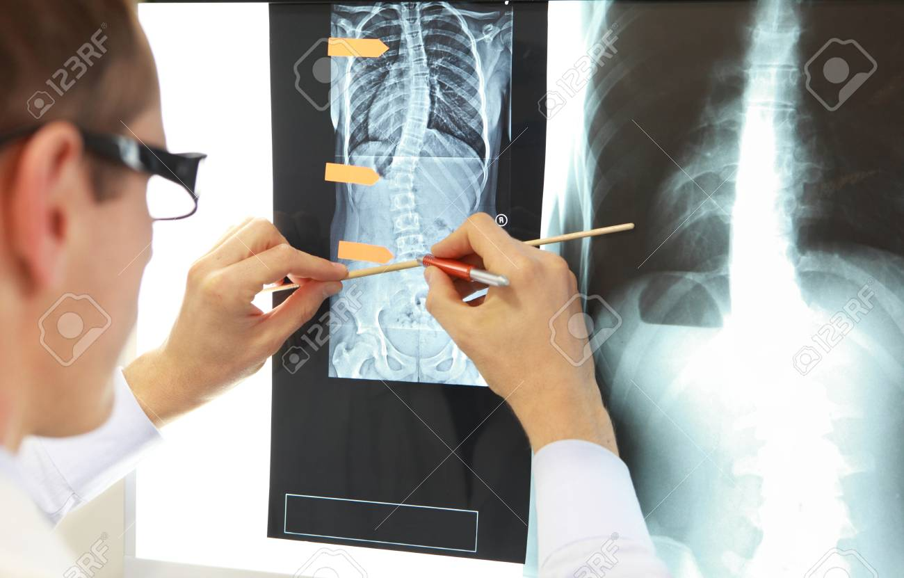 Case study . Doctor working with images of chest and spine at x-ray film viewer,. Diagnosis,treatment planning. - 88935684
