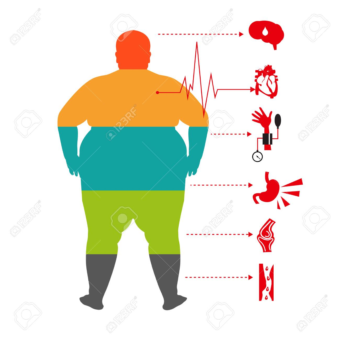 Obesity Related Diseases Man Health Info Graphic Fat And Health Royalty Free Cliparts Vectors And Stock Illustration Image 79506782