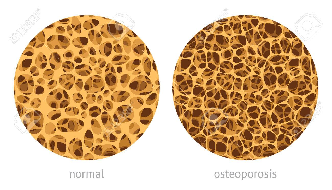 Bone spongy structure vector illustration, normal and with osteoporosis - 61740496