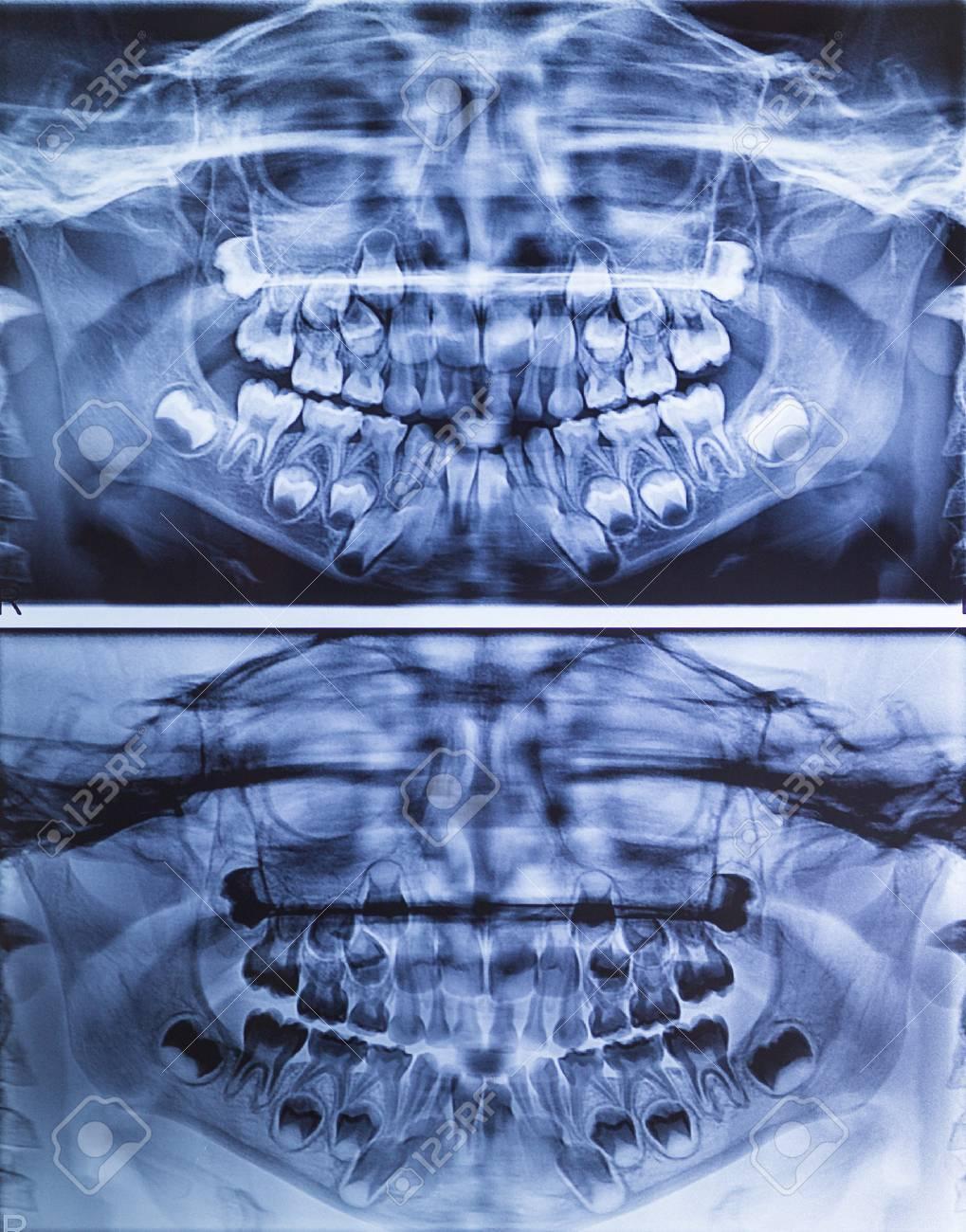 Dental Panorámica De Rayos X De La Mandíbula Superior E Inferior ...