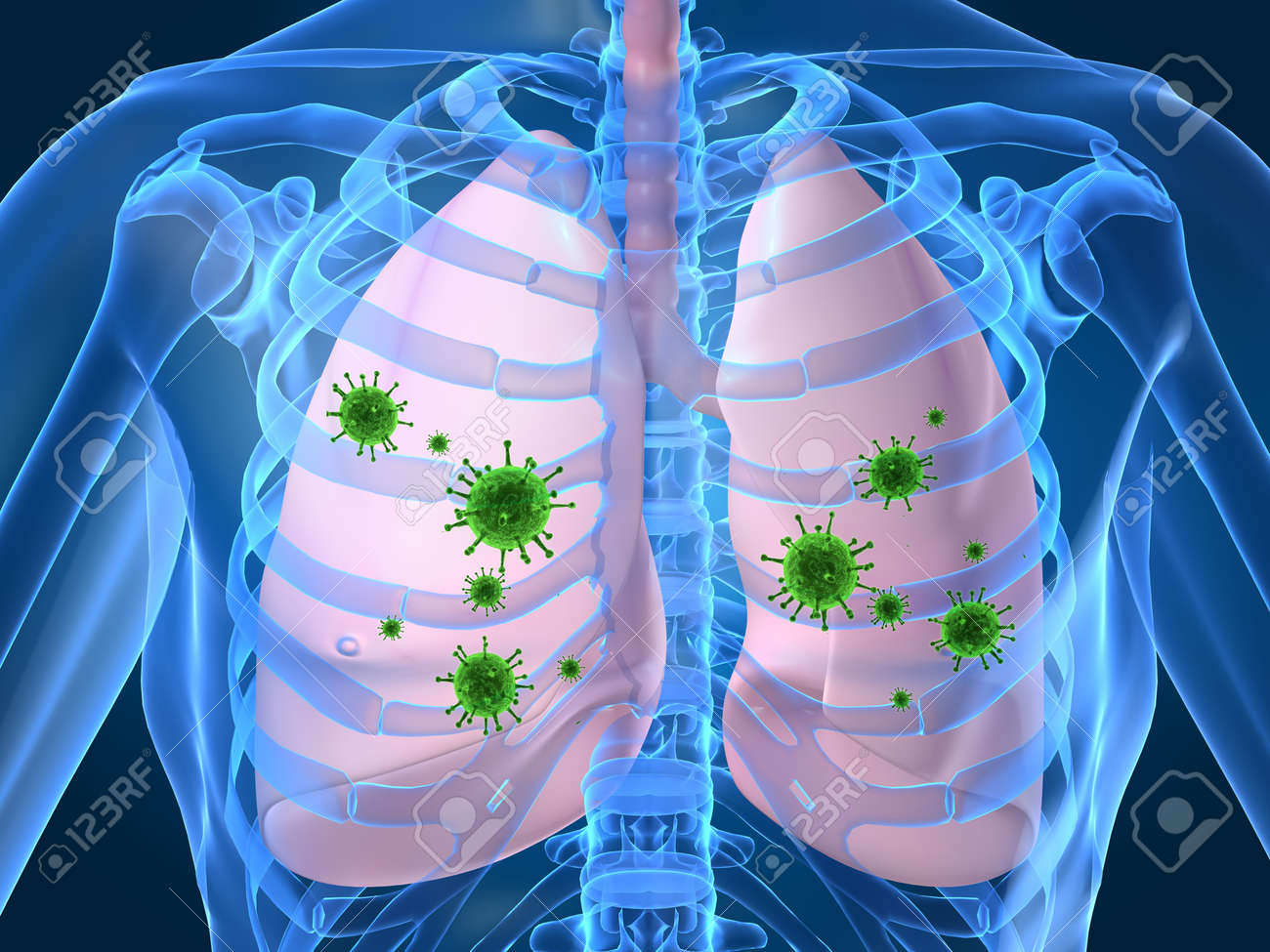 Lung Infection  >> Lung Infection Stock Photo Picture And Royalty Free Image Image