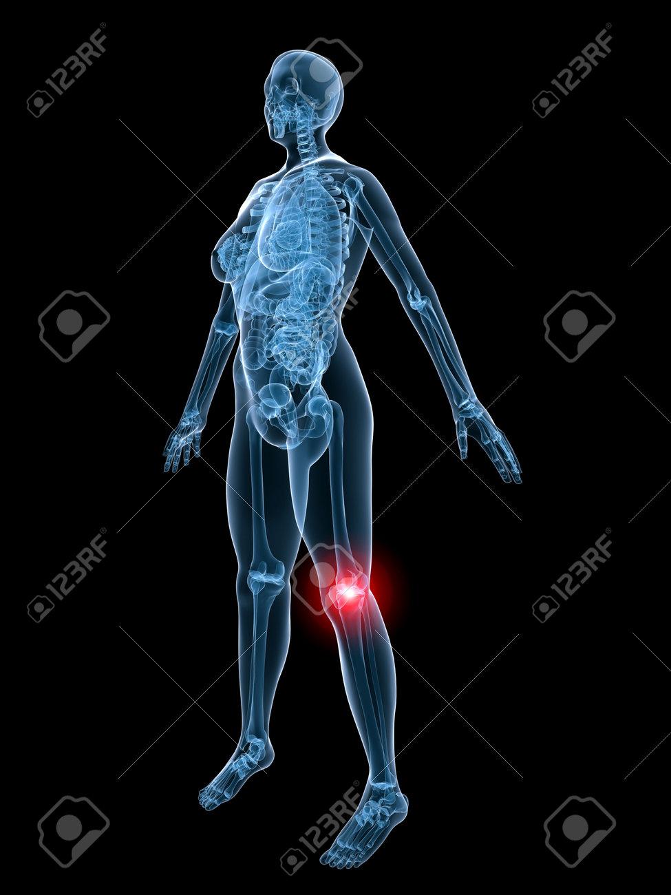 x-ray - dolor de rodilla Foto de archivo - 2846195