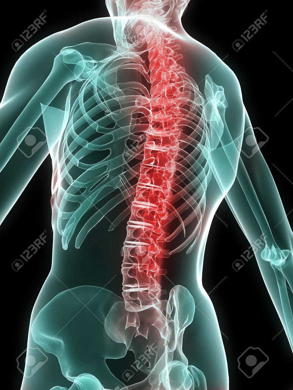 X-ray-Skelett Mit Schmerzhaften Wirbelsäule Lizenzfreie Fotos ...