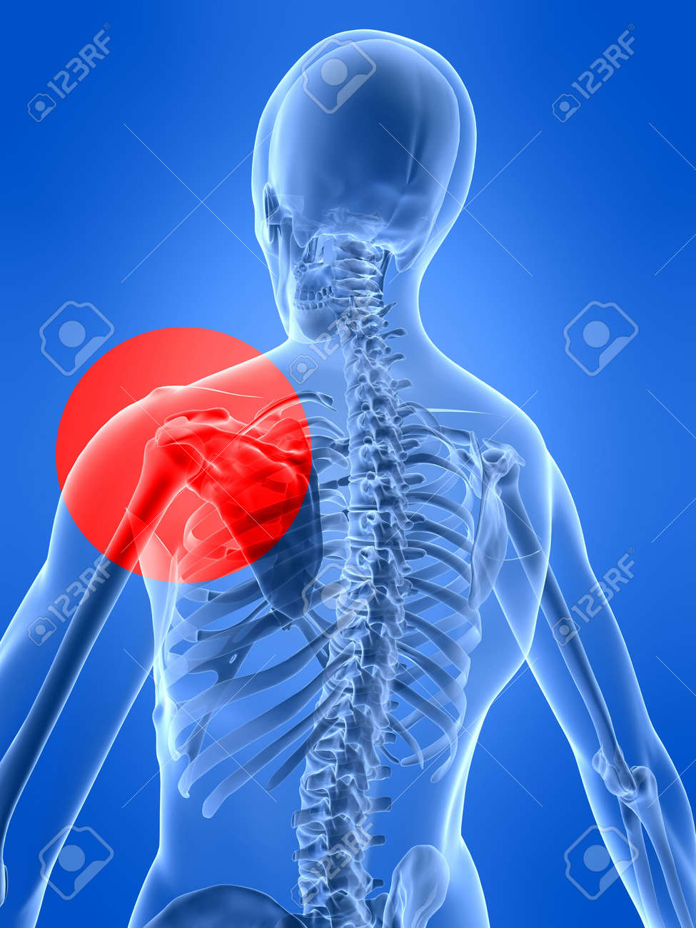 shoulder inflammation Stock Photo - 2912417
