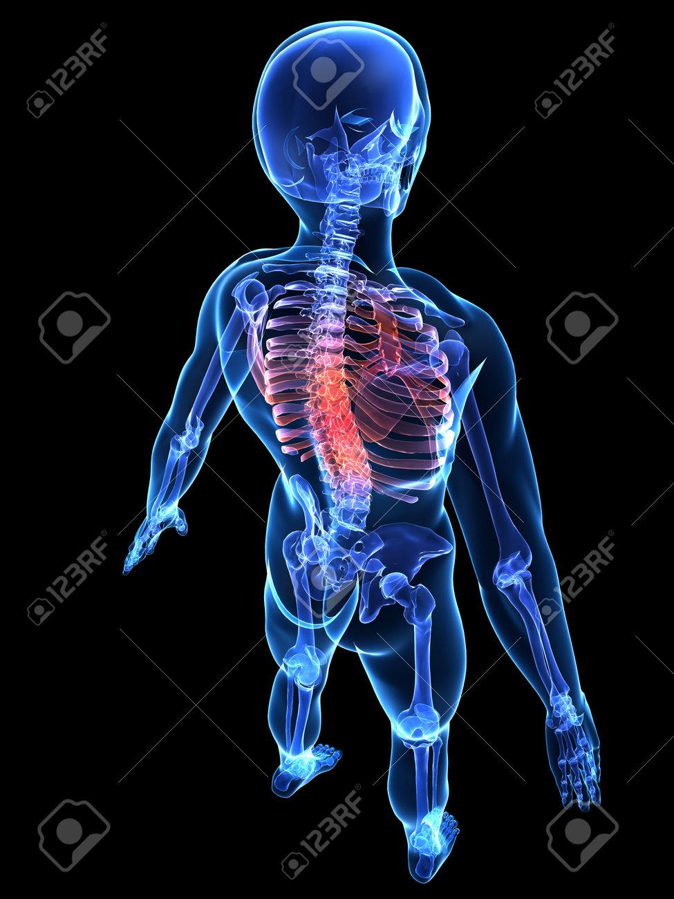 Menschlichen Skeletts Mit Schmerzhaften Zurück Lizenzfreie Fotos ...
