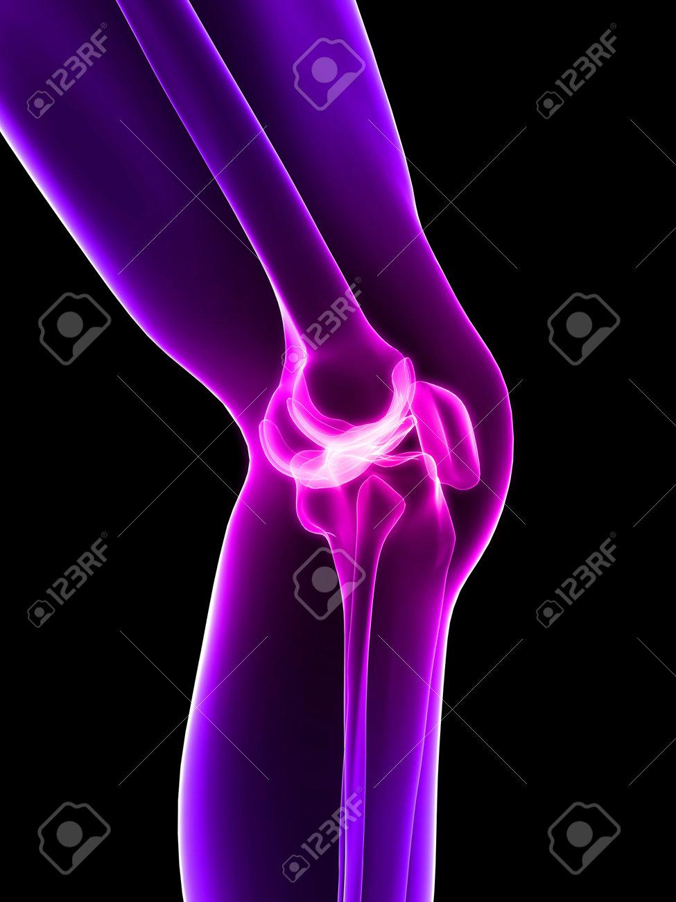 Поясничные боль выше поясницы, равно как и другие боли, могут быть по своему характеру эпикритической, а также