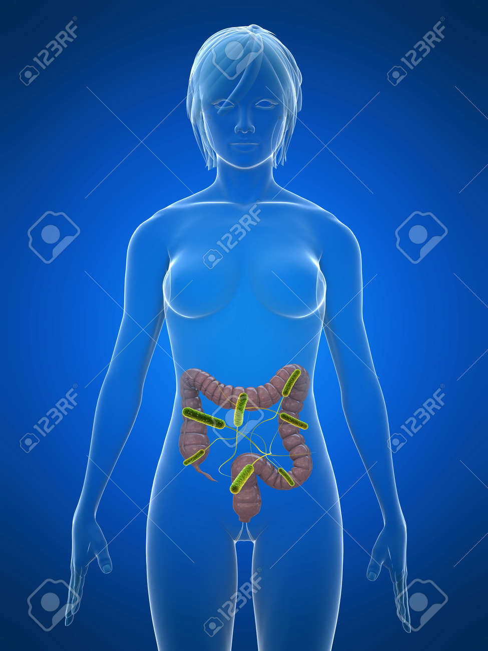 transparent body with colon infection Stock Photo - 5960260