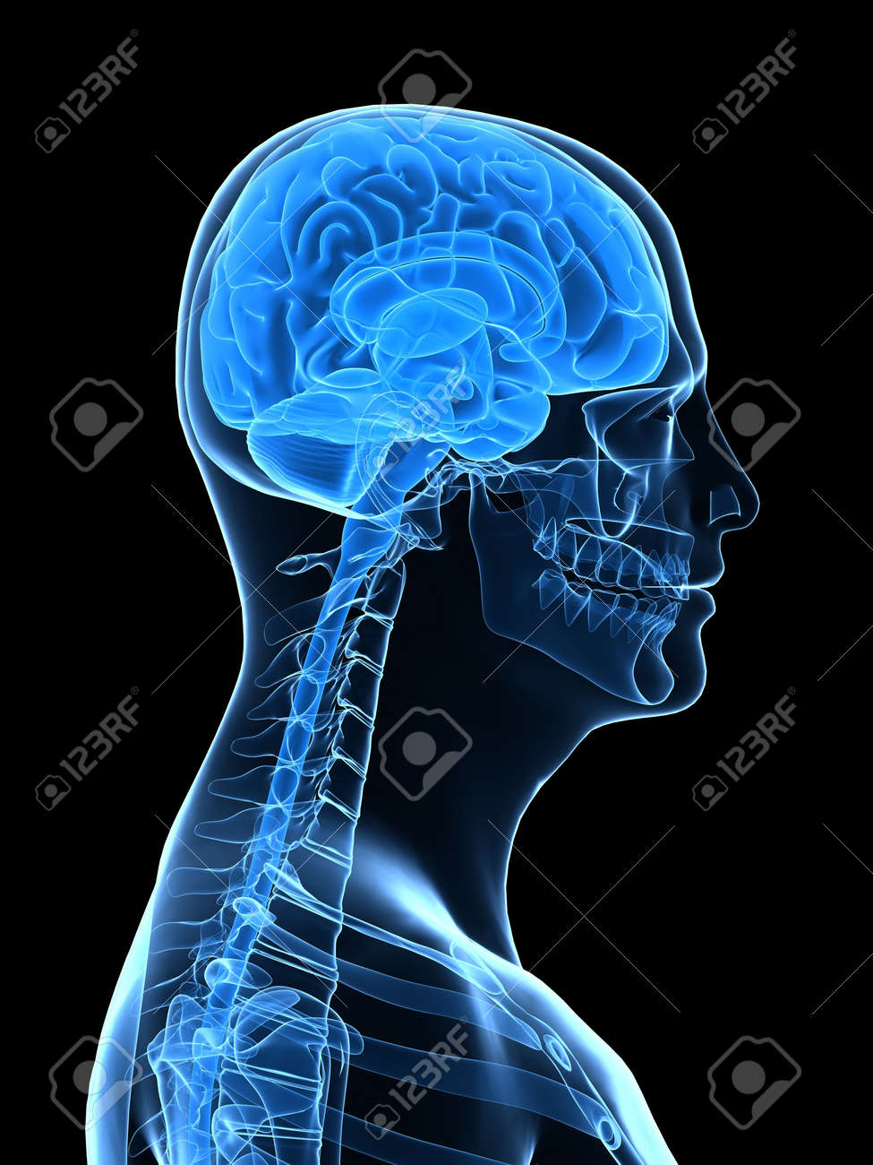 x-ray human head with brain parts Stock Photo - 5960348