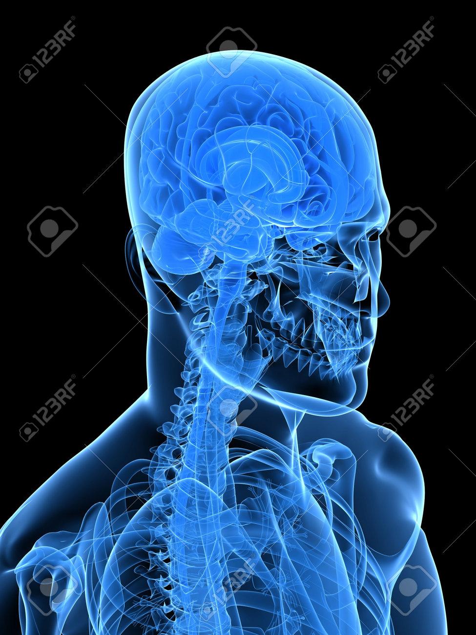 x-ray human head with brain Stock Photo - 5960170