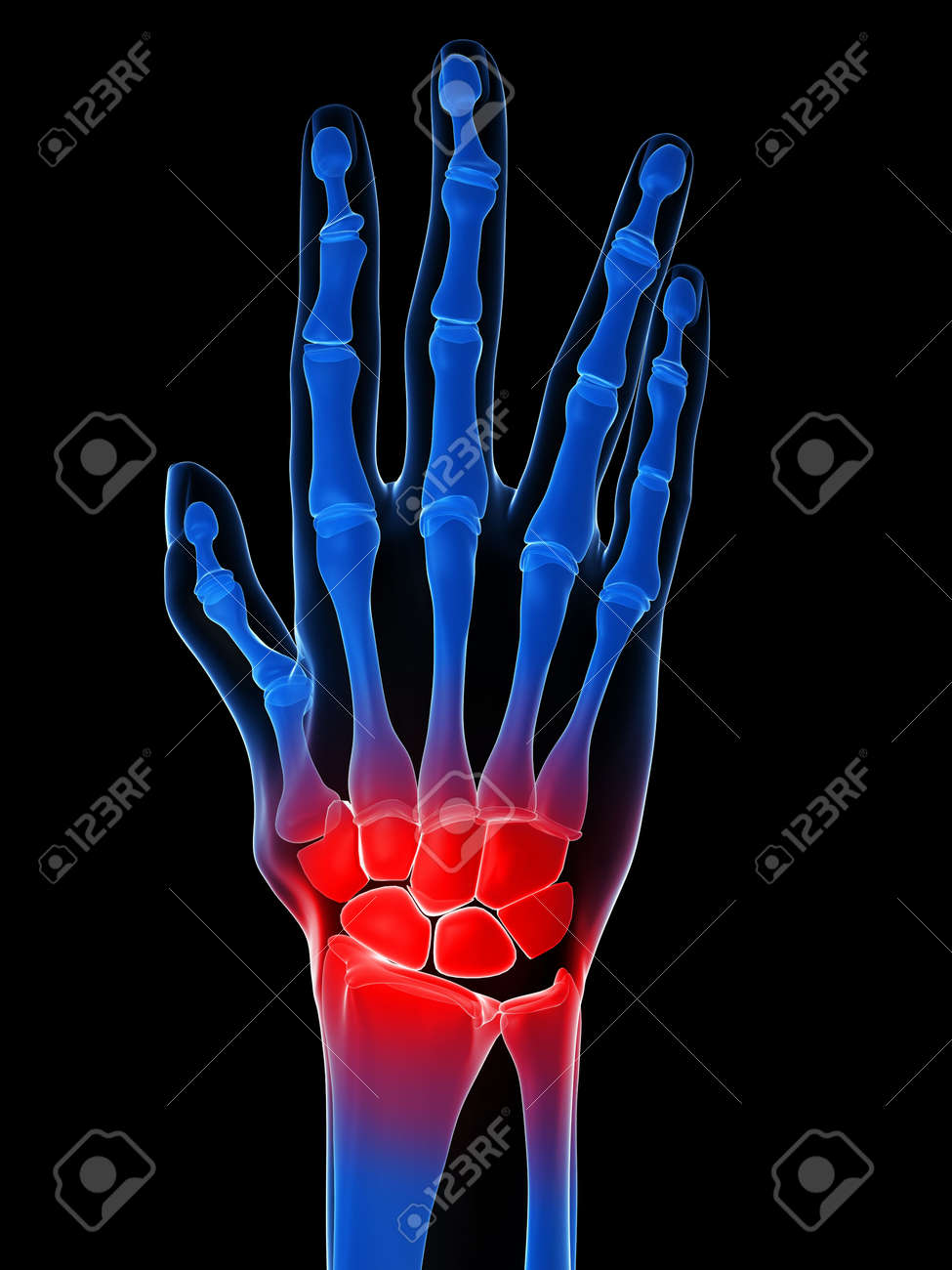 Human X-ray Hand - Arthritis Stock Photo, Picture And Royalty Free ...
