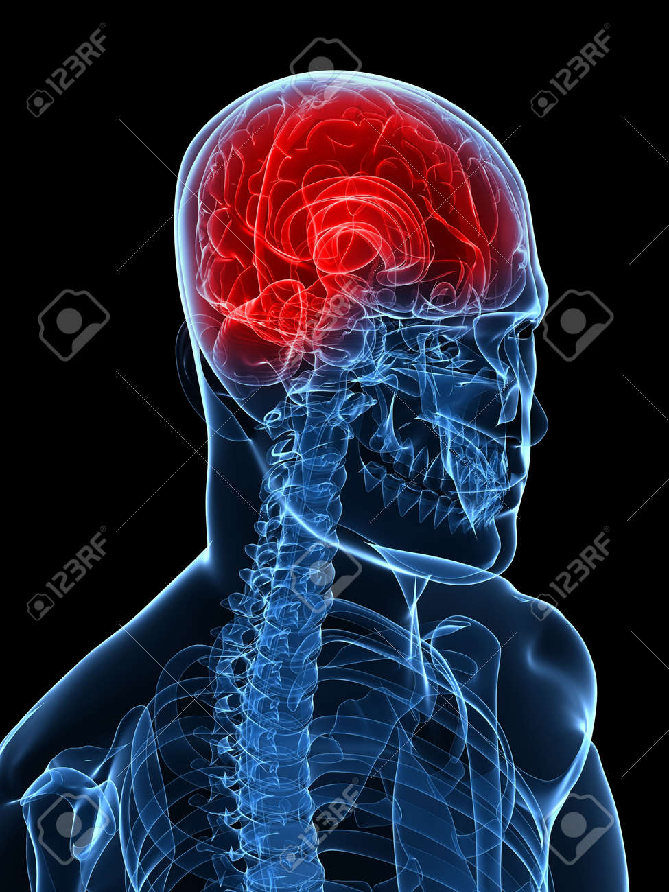 highlighted brain - headache/migraine Stock Photo - 6003203