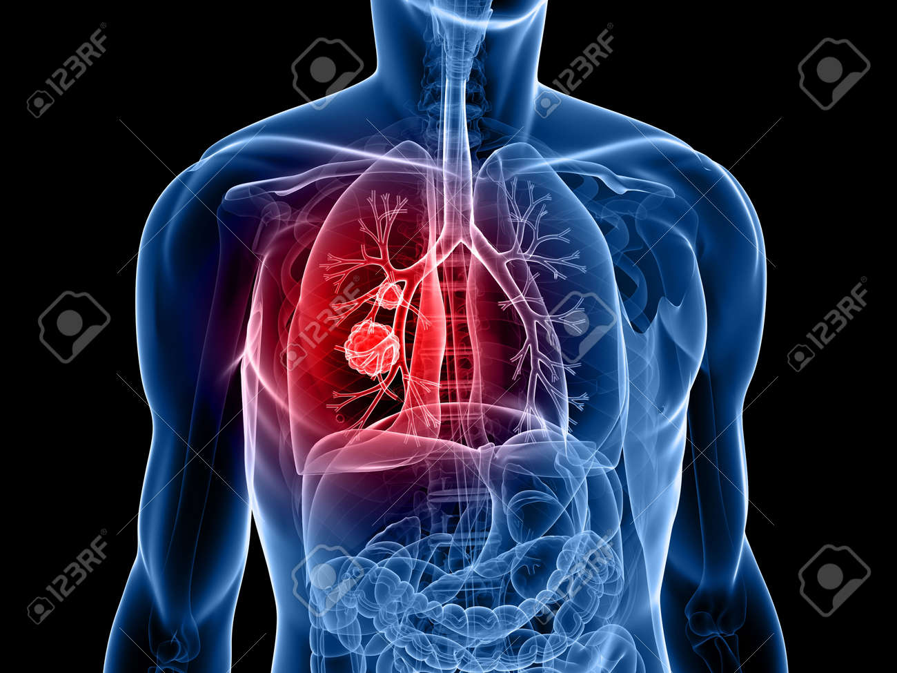 Human Body Shape With Lung Cancer Stock Photo, Picture And Royalty ...
