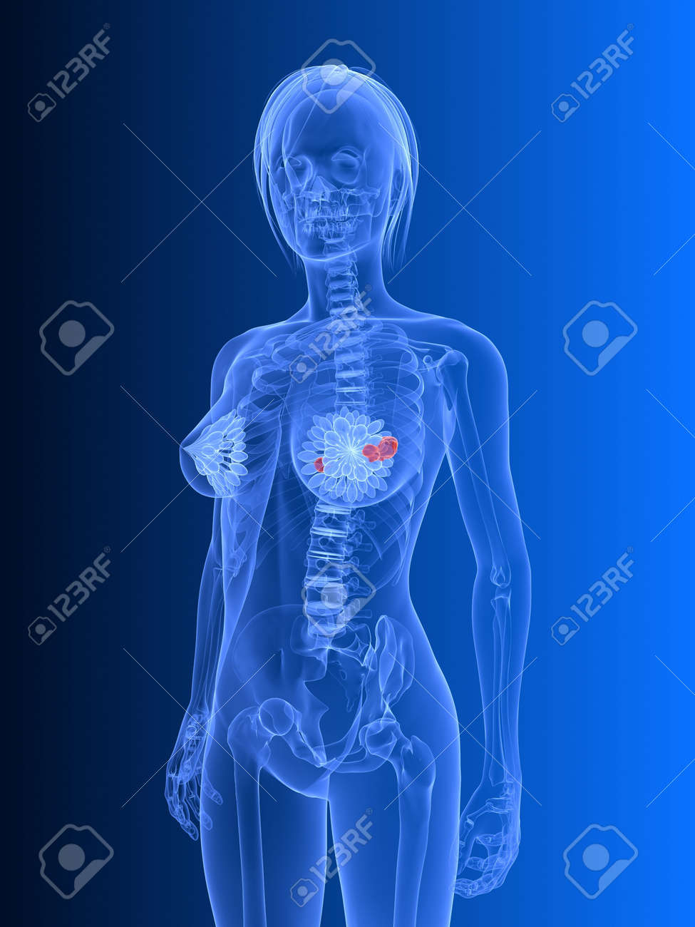 transparent female body - breast cancer Stock Photo - 6530646