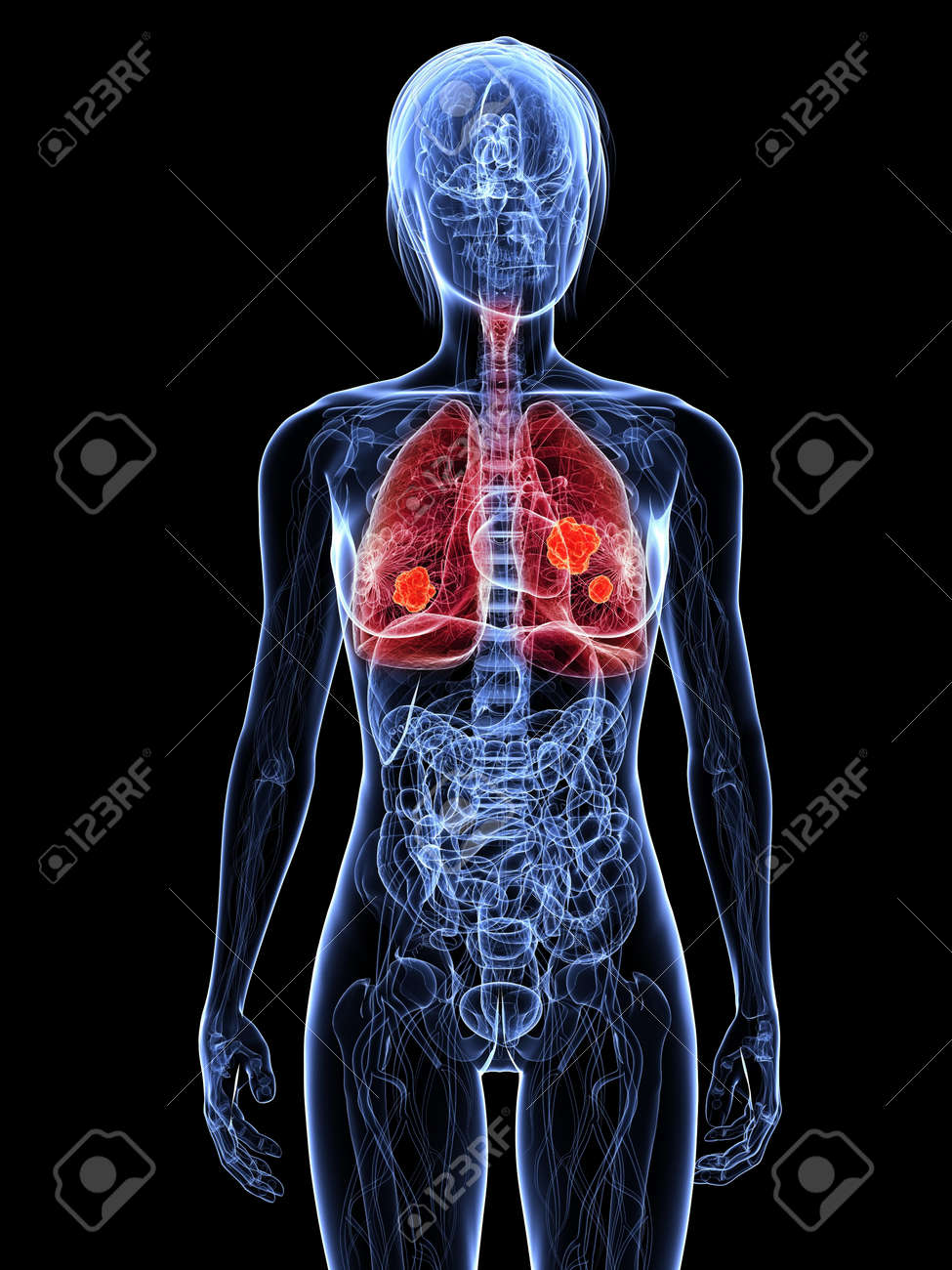 transparent female body with hihglighted lung Stock Photo - 7308792