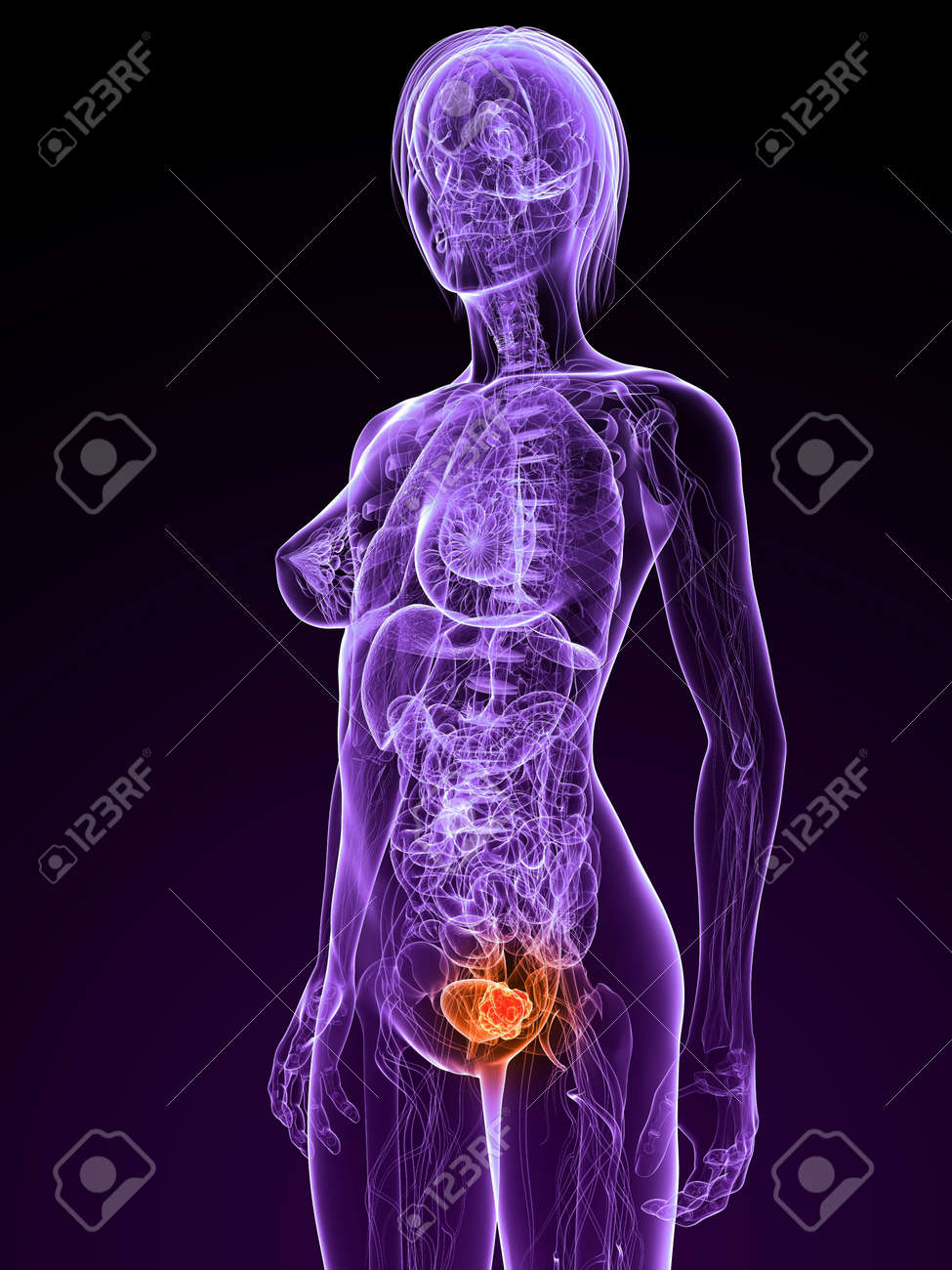 transparent female anatomy with tumor in bladder Stock Photo - 7308818