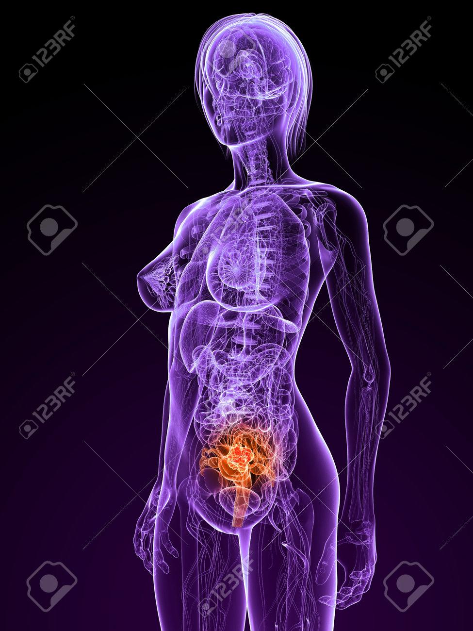 Transparent Female Anatomy With Tumor In Uterus Stock Photo Picture