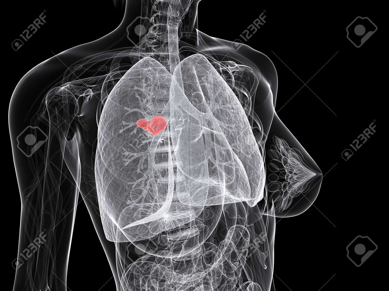 lung cancer Stock Photo - 7286284