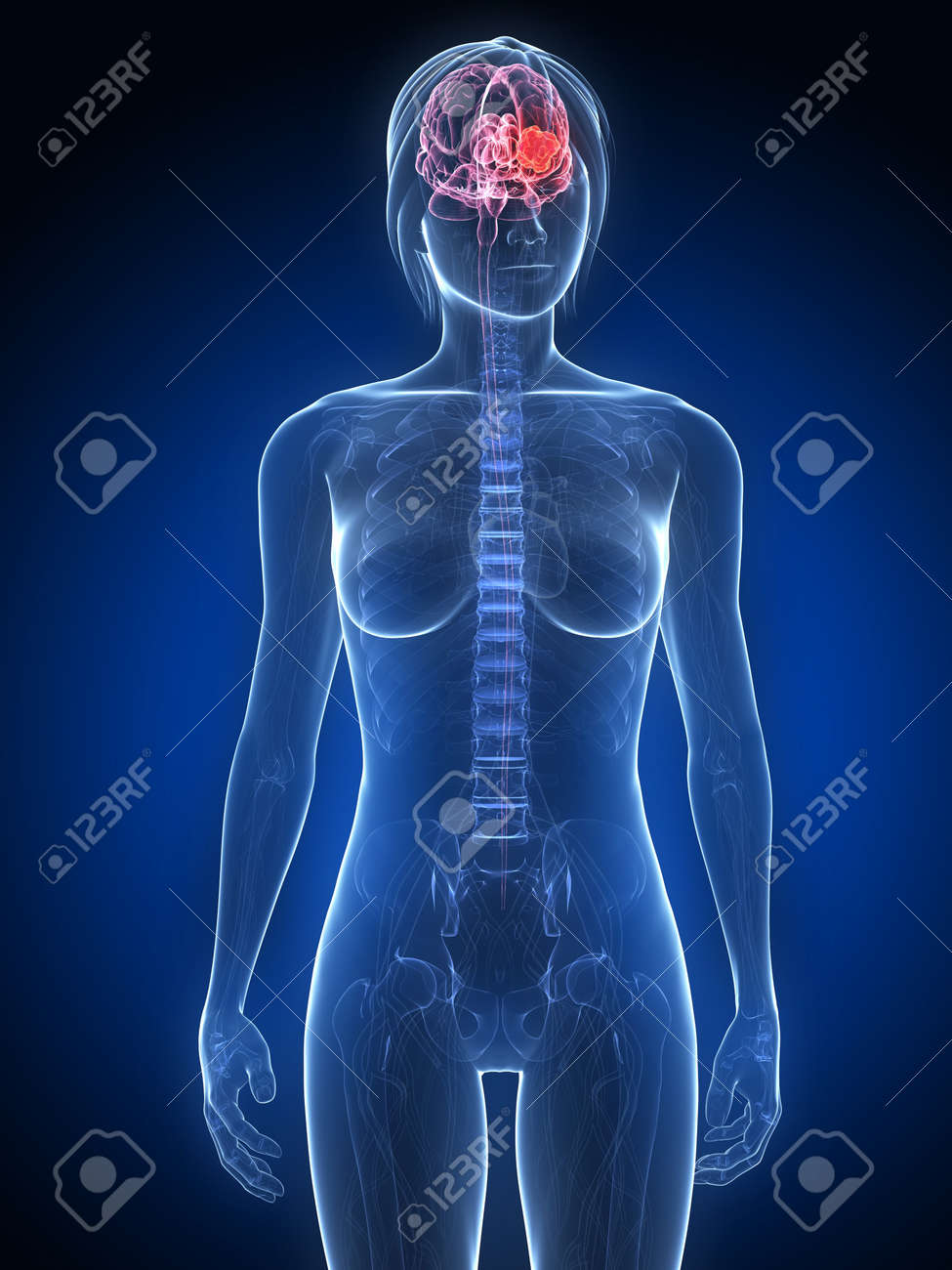 female anatomy with tumor in brain Stock Photo - 7249239