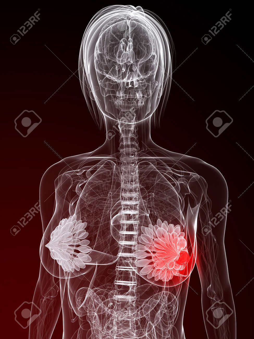 female anatomy with tumor in breast Stock Photo - 7248758